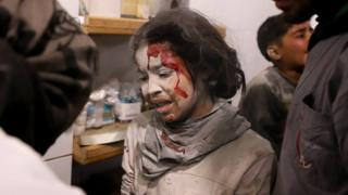 A Syrian girl receives treatment following a reported government air strike on the besieged Eastern Ghouta (7 March 2018)