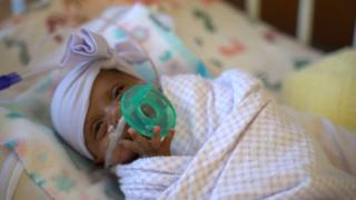 Premature baby in intensive care at Sharp Mary Birch Hospital