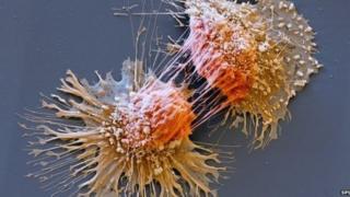 Célula de tumor