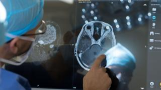 A doctor examines a brain scan.