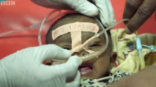 Un médecin a trouvé le moyen de sauver des enfants atteints de pneumonie à seulement 1 dollar.