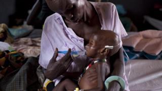 Près de 250 enfants de plus de cinq ans sont morts au Soudan des suites de diarrhée aigüe.