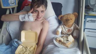 Callum Crowley eating while recovering