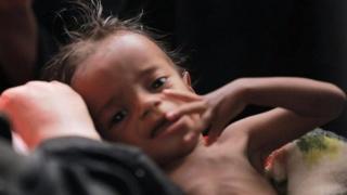 ယီမင်မှာ ဝမ်းရောဂါ ဖြစ်ပွားမှုလျော့ကျလာ