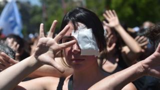 Mujer protestando con un parche en el ojo contra el uso de perdigones.