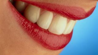 सफ़ेद दांत