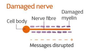 A damaged nerve