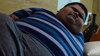obesity children