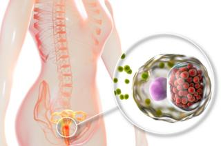 Imagem ilustra mulher com infecção de clamídia