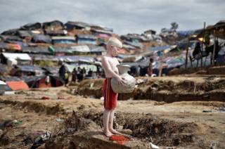 Un niño rohingya albino carga un jarro con agua en un campo de refugiados.