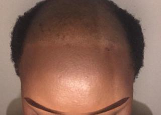 Bandile's balding head