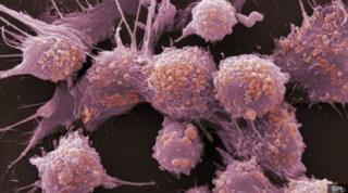 เซลล์มะเร็งต่อมลูกหมาก