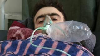 Casualty of suspected chemical attack in Idlib (04/04/17)