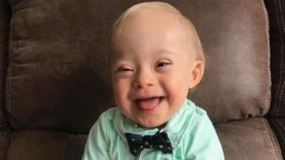 Lucas Warren, an 18-month-old baby with Down syndrome, smiles into the camera. He is wearing a light green shirt with a black spotted bowtie.