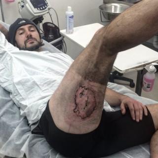 Gareth Clear showing burn on leg