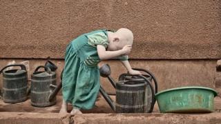 Dhibeen Albinism Taanzaniyaatti namoota 1,400 keessaa nama tokko irratti mul'ata.