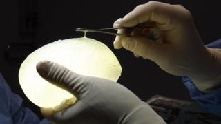 Defective silicone gel breast implant made by PIP - 2011 file pic
