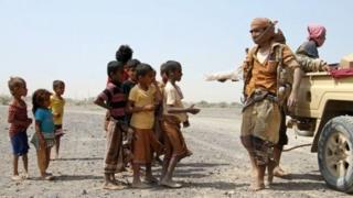 تعداد کودکان یمنی زیر پنج سال که دچار سوء تغذیه شدید هستند بیش از ۴۶۰ هزار نفر اعلام شده است.