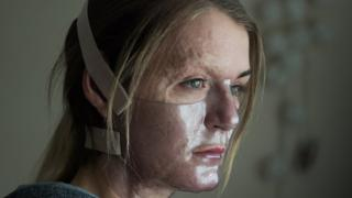 Vicky Knight posing in the film, wearing a clear face mask for her character's facial surgery