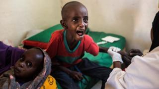 El pequeño Abdullahi Mohamud llora al recibir una inyección.