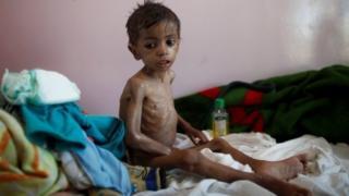 عکس آرشیوی از یک کودک دچار سوتغذیه در صنعا