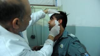 Один із постраждалих внаслідок теракту в Кабулі