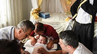 Trên thế giới, việc cắt bao quy đầu ở các bé trai thường được thực hiện do quy định tôn giáo hoặc vì lý do sức khỏe