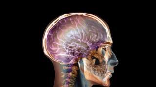 Imagem computadorizada de um cérebro humano