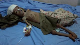 یمن گرفتار بدترین بحران انسانی جهان
