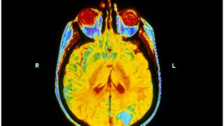 MRI scan showing secondary brain tumours
