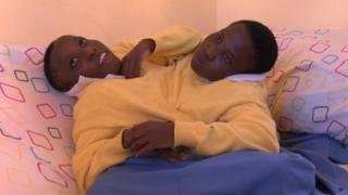 Gêmeas siamesas da Tanzânia