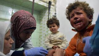 Un niño sirio llora mientras es atendido por médicos