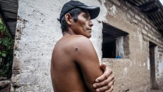 Leonido, activista de la organización que lideraba Berta Cáceres, sobrevivió un intento de asesinato