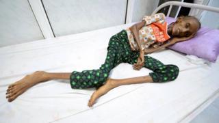 Saida Ahmad Baghili en la cama de un hospital en Yemen.