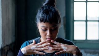 Malaysian photographer takes self portrait of her vitiligo