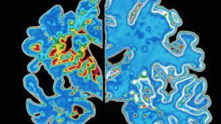 Scan of brain showing Alzheimer's vs normal