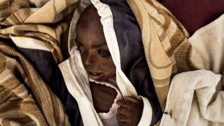 أحد الأطفال الذين يعانون من سوء التغذية بسبب الصراع في إقليم كاساي بوسط الكونغو