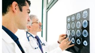 Doctors looking at a series of brain scans