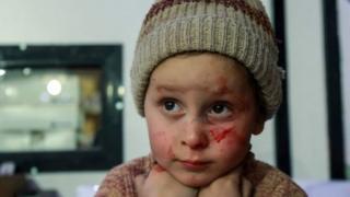 раненый ребенок