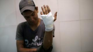 A protester holds up an injured and bandaged hand