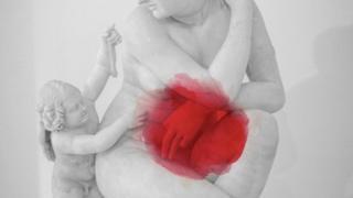 Некоторые врачи до сих пор рассказывают пациенткам, что беременность является эффективным средством от эндометриоза