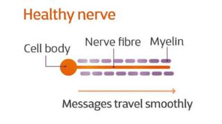 An illustration of a healthy nerve
