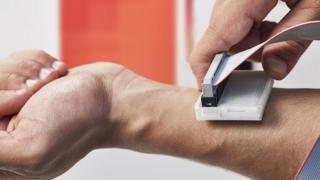 The skin cancer detecting device being used on a man's arm