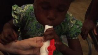 اختبار جديد لاكتشاف الملاريا عبر التنفس