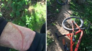 Injured man in woods with wire strung over pathway