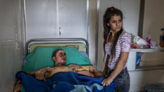 Injured Kurdish Fighter Receives Hospital Visit