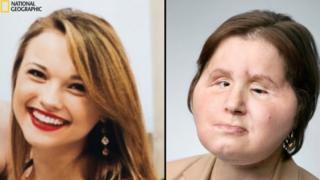 Katie Stubblefield ameliyat öncesi ve sonrası