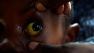 Yello Eyes of Sickle Cell Patient