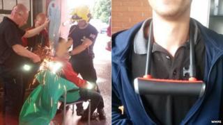 Man having bike lock cut off his neck