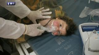 सीरिया में एक घायल बच्चा.